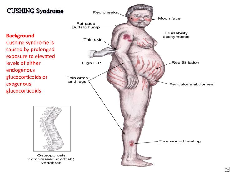 Cushing's disease treated with holistic medicine by Dr. Tsan